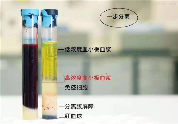 prp分离胶管、prp分离采血管、prp离心管